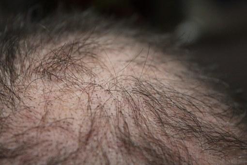 frontal hair loss