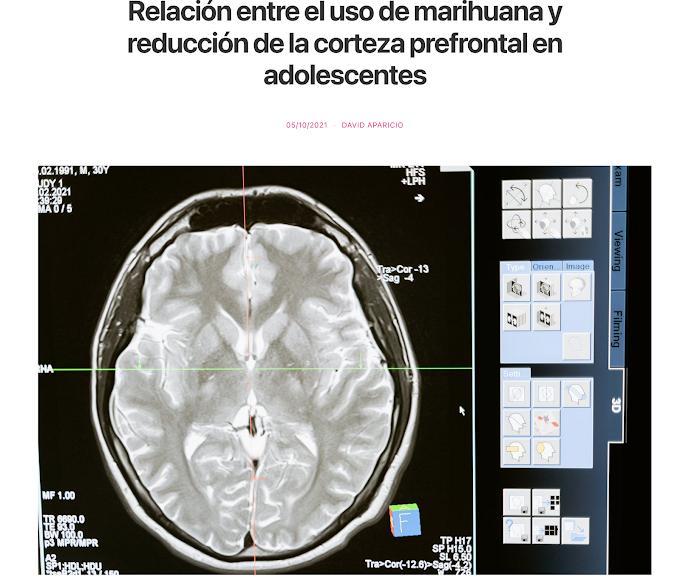 Relación entre el uso de marihuana y reducción de la corteza prefrontal en adolescentes