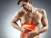 5 Obat Penyakit Liver Secara Alami Yang Bisa Kamu Coba Dirumah