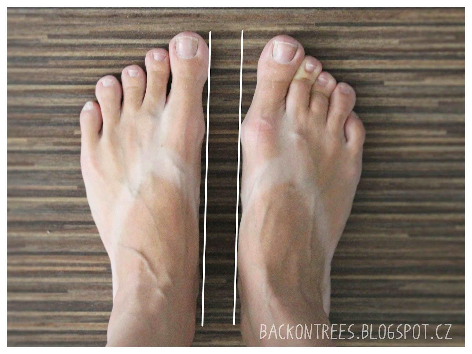 Už jedině barefoot  dc7a85656d