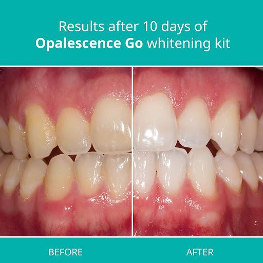 Get professional White Teeth : Teeth whitening kits