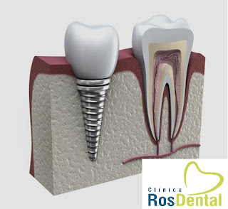 IMPLANTES DENTALES EN MADRID CENTRO