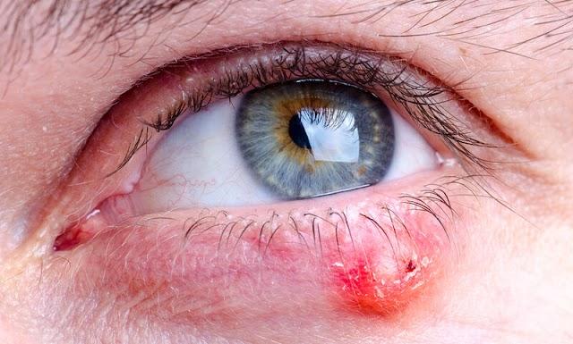 Κριθαράκι στο μάτι: 4 φυσικοί τρόποι αντιμετώπισης