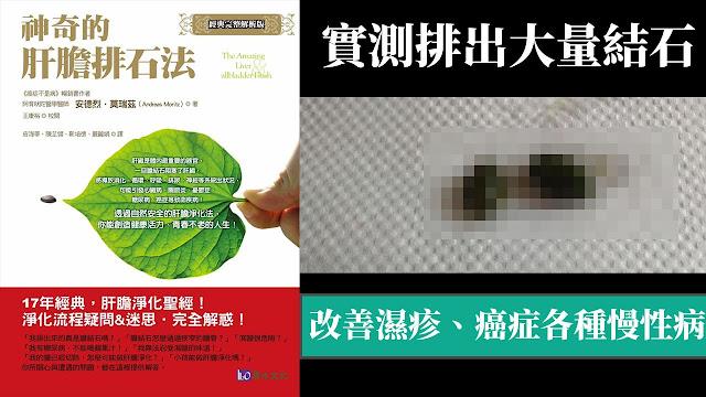 肝膽排石法