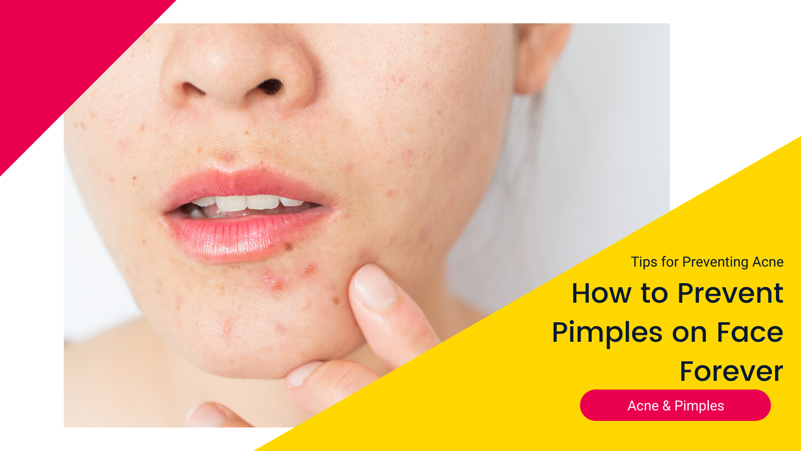 how-to-prevent-pimples-face-forever-2020