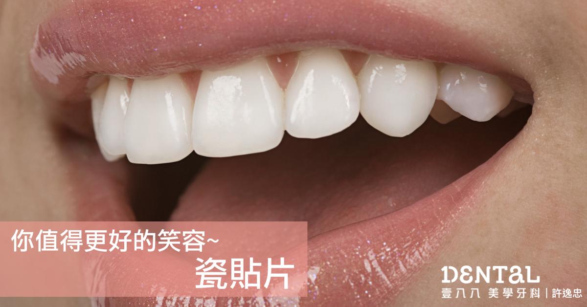 改善微笑的救星~瓷貼片,假牙不一定要磨掉大量好的齒質!|壹八八美學牙醫診所