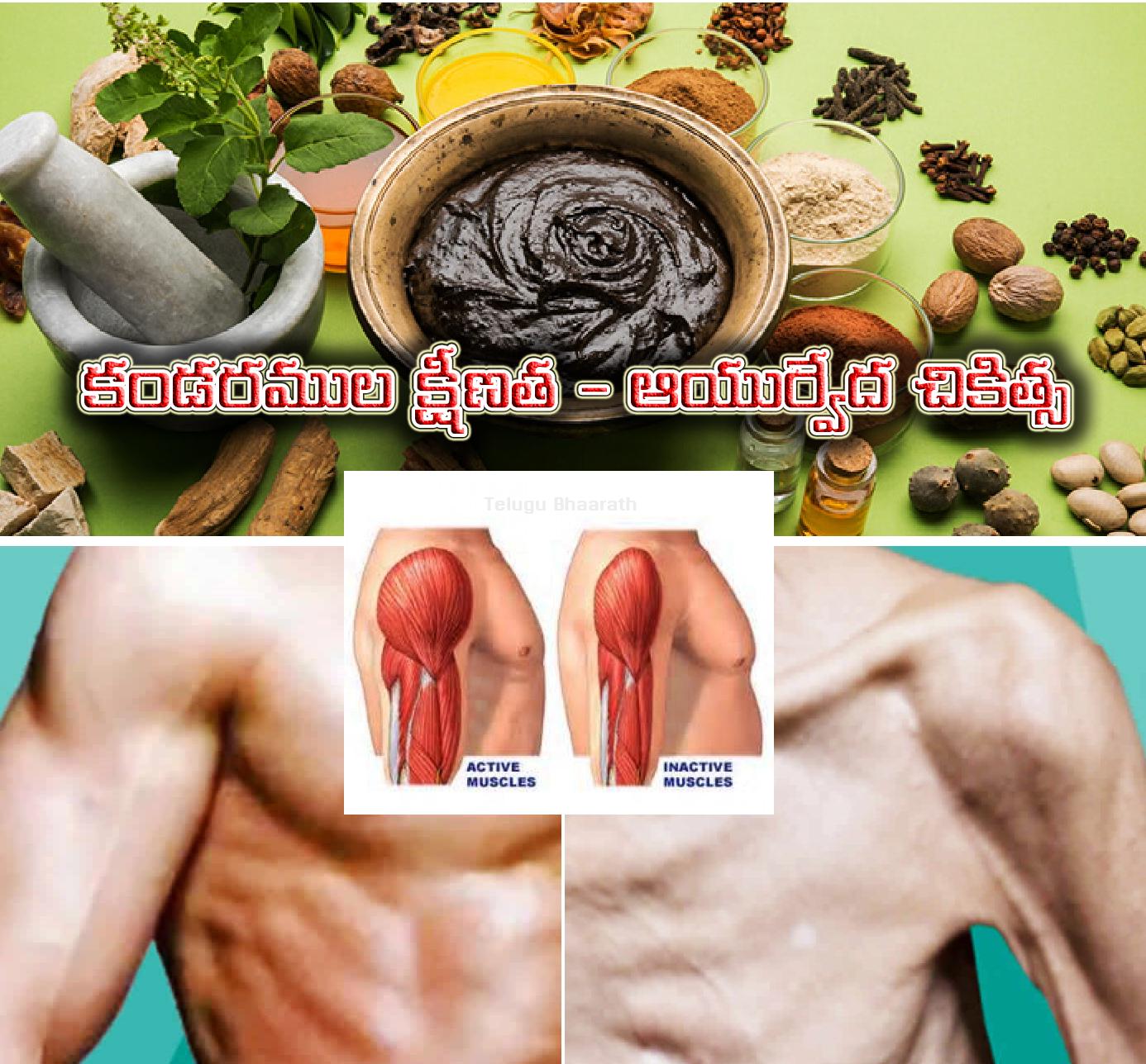 కండరముల క్షీణత - ఆయుర్వేద చికిత్స - Muscular atrophy - Ayurvedic treatment