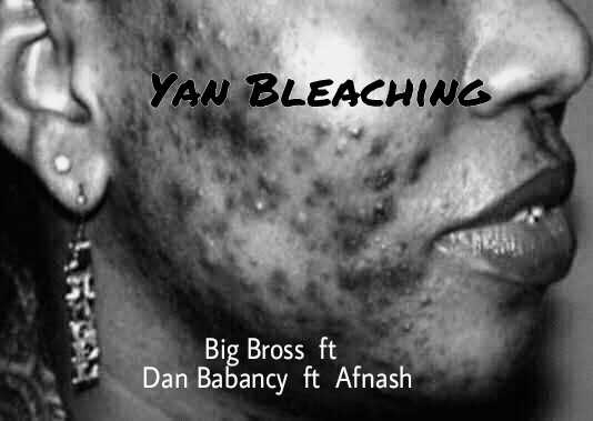 Music: Big Bross ft Dan Babancy ft Afnash - Yan Bleaching