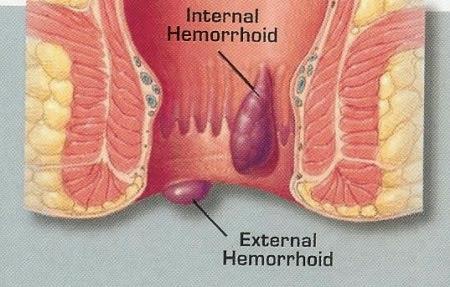 hemoroizii apar ca urmare a inflamarii venelor anale si rectale