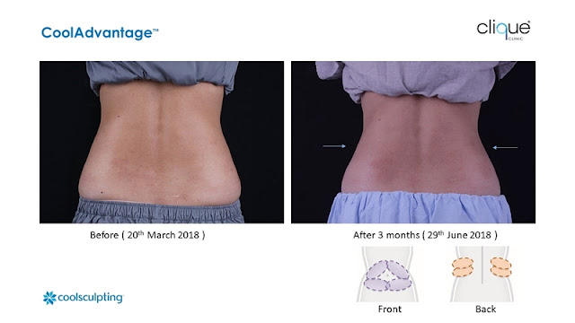 CoolSculpting Treatment, Clique Clinic, CoolSculpting Review, Slimming, Beauty