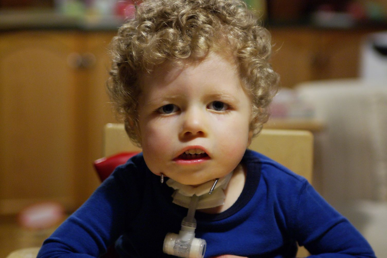 Moebius Syndrome And Our Family Quick Infection And Poo