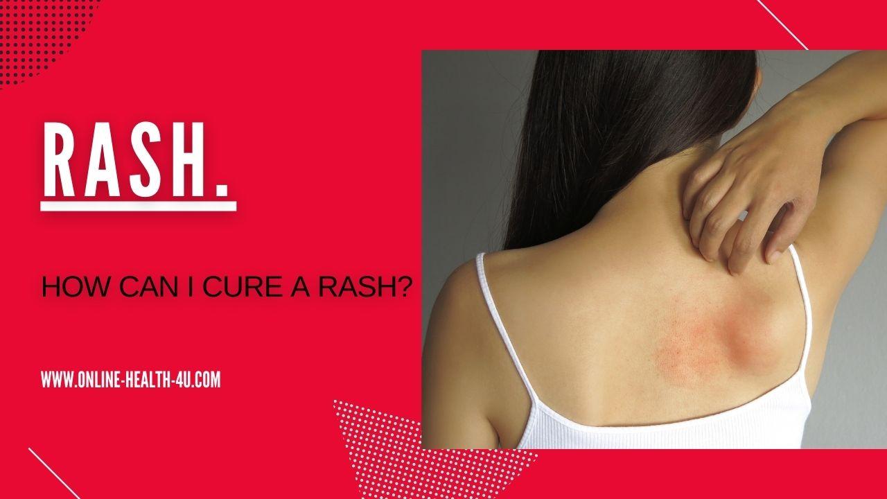 skin-allergy-types-rash-decision