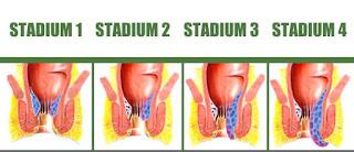 gejala ketika keluar darah segar menetes dari anus ketika berak