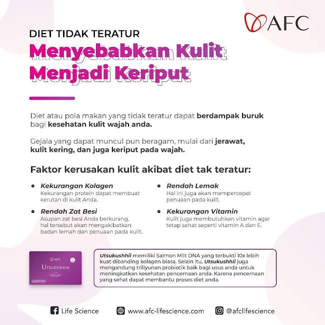Agen Jual: SOP 100 AFC, SOP Subarashii Cara Minum, di Medan