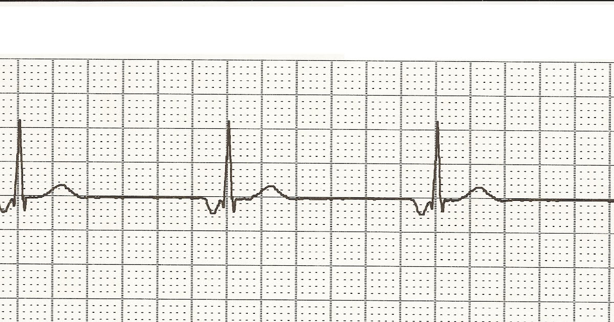 Float Nurse: EKG Rhythm Strips 14: Junctional Rhythms