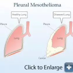 what-is-mesathelioma