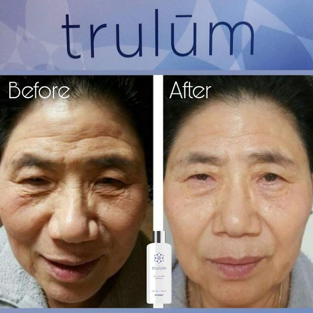 Jual Serum Penghilang Keriput Trulum Skincare Kota Agung Barat Tanggamus