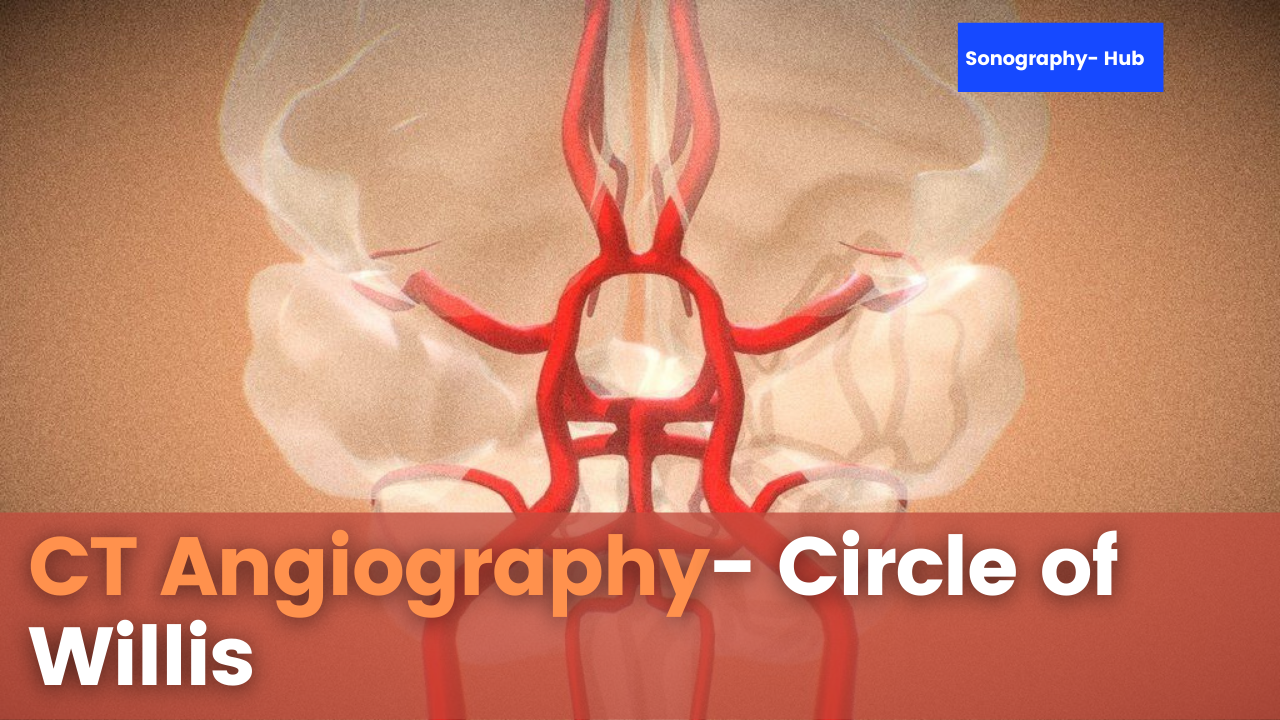Angiography For The Circle Of Willis | CT Protocols