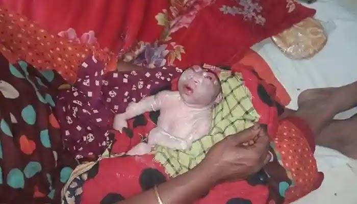 গাইবান্ধায় তৃতীয় লিঙ্গের অদ্ভুত এক শিশুর জন্ম