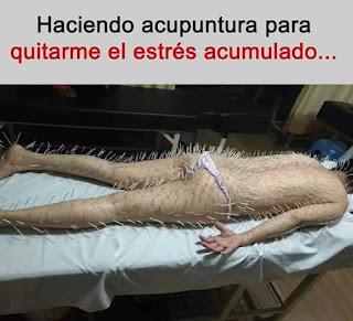 Mujer con cientos de agujas de acupuntura