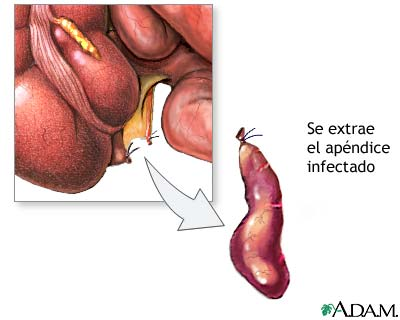 DR. JUAN HERNÁNDEZ ORDUÑA. : Apendicitis aguda. Publico