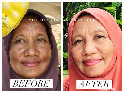 Testimoni Youth Skincare Shaklee: Jeragat Puan Salina Sudah Hilang