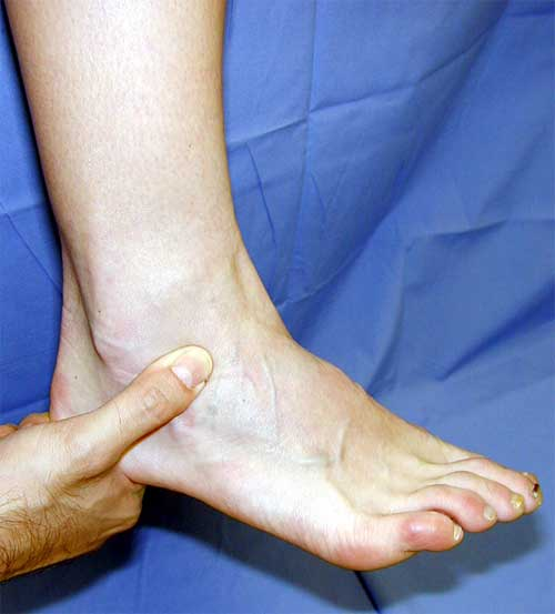 Healthy and Beauty Tips: Treatment for Ankle Pain | Ankle ...