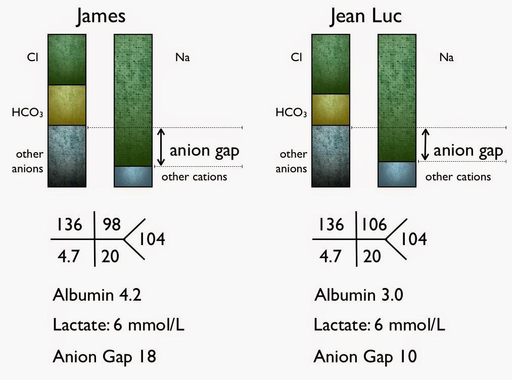 #Nephmadness Explanations: Serum Anion Gap