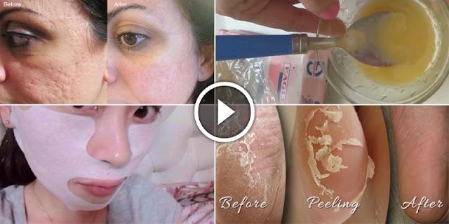 How To Remove Acne And Pimples And Get Fair Skin!