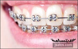اسعار تقويم الاسنان في الشارقة