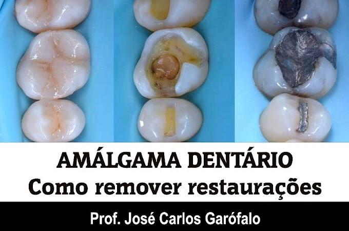 AMÁLGAMA DENTÁRIO: Como remover restaurações - Prof. José Carlos Garófalo