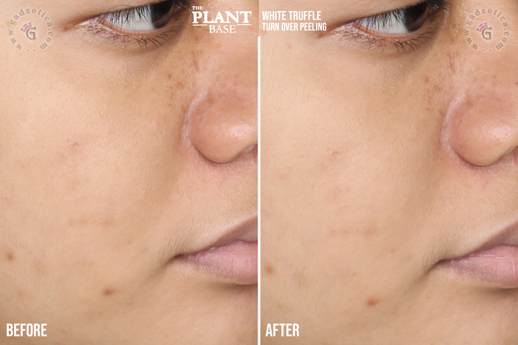 The Plant Base White Truffle Turn Over Peeling Review