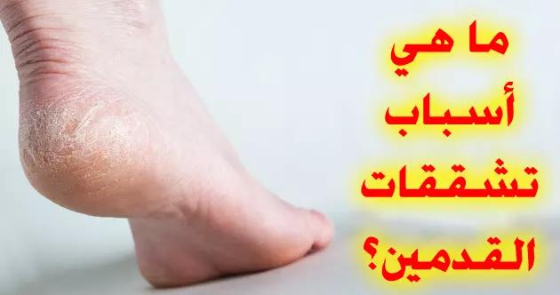 تشققات الأقدام