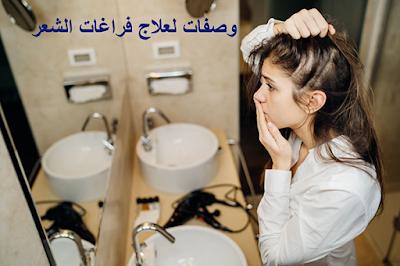 وصفات لعلاج فراغات الشعر