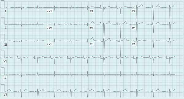 Cardiomyopathies ECG