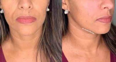حل مشكلة التجاعيد حول الفم
