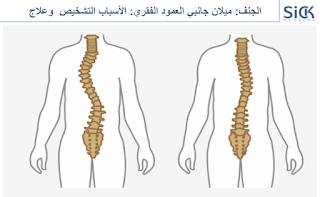 الجنف: ميلان جانبي العمود الفقري: الأسباب التشخيص  وعلاج