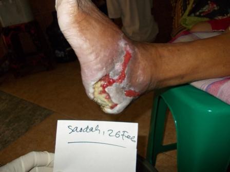 rawat luka kencing manis diabetes