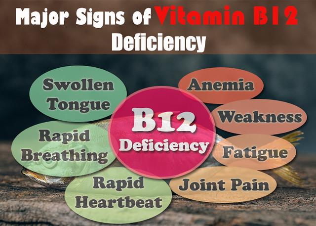 Vitamin B12 deficiency: Vitamin B12 rich food