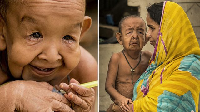 Poor Boy From Bangladesh Aged Prematurely Due To Rare Genetic Disease