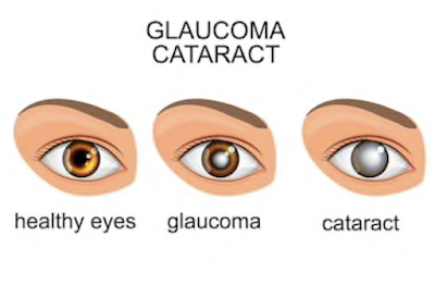 glaucoma and cataract