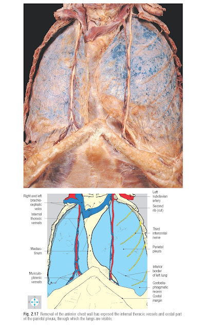 Removal of the anterior chest wall has exposed the internal thoracic vessels and costal part of the parietal pleura, through which the lungs are visible.