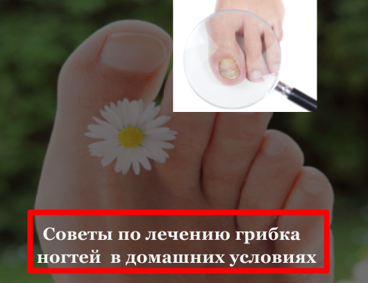 Как избавиться от грибка ногтей на ногах в домашних
