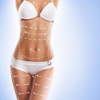 duvidas sobre cirurgia plastica
