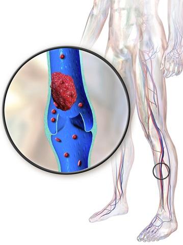 Asuhan Keperawatan Pada Pasien dengan Tromboflebitis - Intervensi