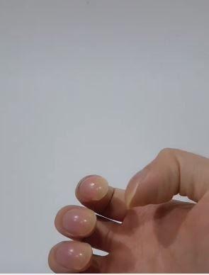 Penyebab Clubbing Finger Kuku Melengkung Viral di TikTok dan Jari Tangan Tabuh Nail Tanda Penyakit Apa