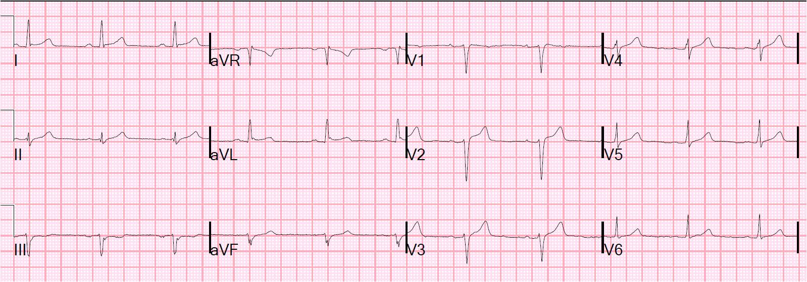 Tombstone St Elevation : Dr smith s ecg anterior st elevation is it stemi