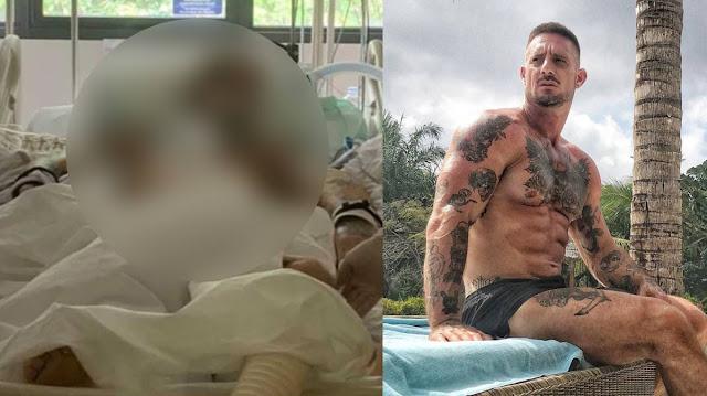 Сёрфер за полтора месяца превратился в скелет, потеряв 32 кг, и умер от загадочной инфекции на Бали