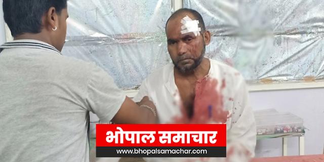 SUJALPUR से आई बारात पर DEWAS में पथराव, 1 मौत, 2 गंभीर | MP NEWS