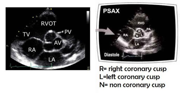 Magnified view of Parasternal Short Axis View (PSAX) at the level of Aortic Valve (AV) showing three cusps of AV